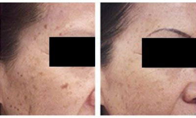 Spot Removal - Inkfree, MD