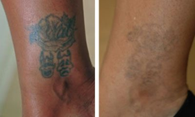 Laser tattoo removal: ankle