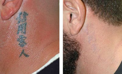Laser Tattoo Removal - Before and After