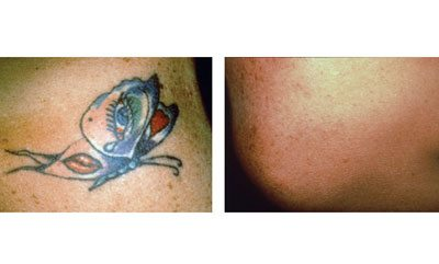 Laser tattoo removal: neck