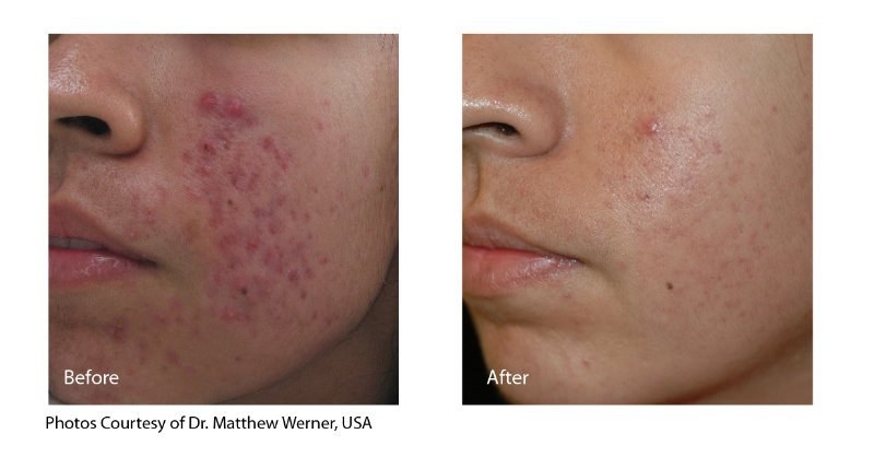 Acne Treatment - Before & After 1 in Houston | Inkfree, MD Laser Clinic