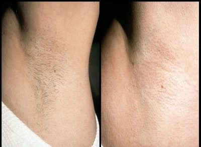 Laser hair removal - armpit. Inkfree. MD
