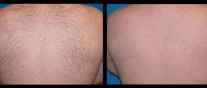 Laser Hair Removal - Before & After - Back, Inkfreemd.com