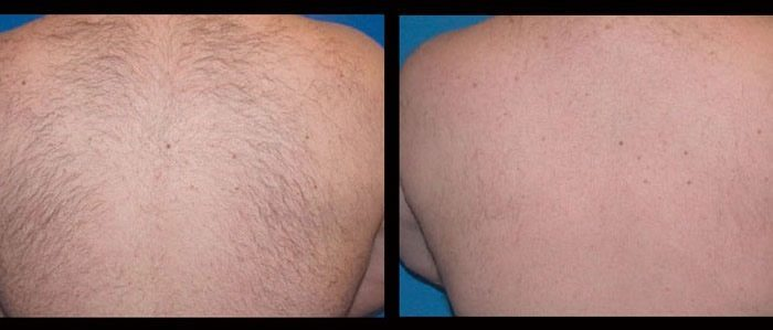 Laser hair removal - back. Inkfree, MD