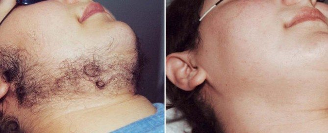 PCOS and Laser Hair Removal