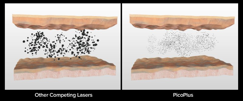 Tattoo Removal - PicoPlus ink particle breakdown comparison