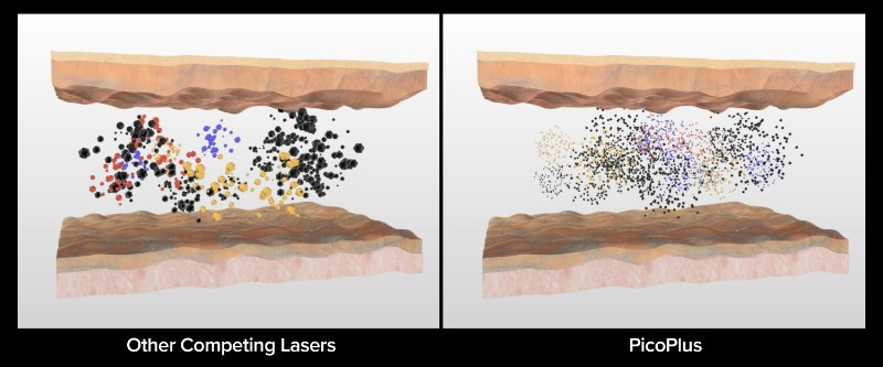 Tattoo Removal - PicoPlus color ink particle breakdown comparison