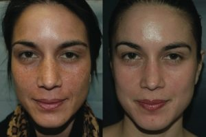VI Peel - Before/After pic - Michelle