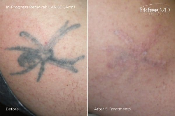 Photo showing progress of tattoo removal on arm after 5 laser treatments