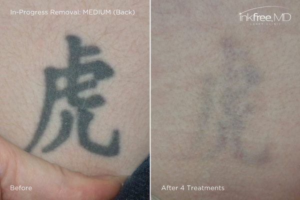Photo showing quick progress of tattoo removal on back after 4 laser treatments