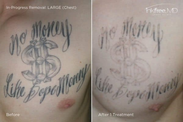 Photo showing progress of tattoo removal on chest after 1 laser treatment