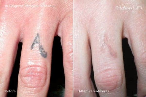 Photo showing quick progress of tattoo removal on finger after 5 laser treatments