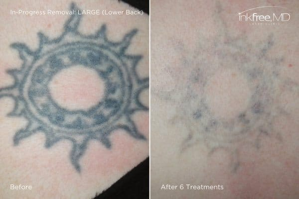 Photo showing progress of tattoo removal on lower back after 6 laser treatments