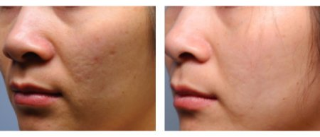 Dermaplaning - Before & After
