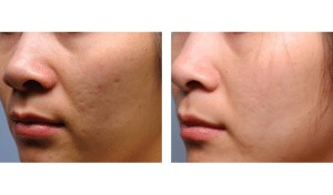 Dermaplaning - Before and After