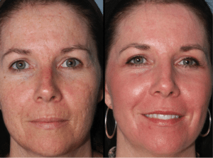 VI Peel - Medical grade chemical peel