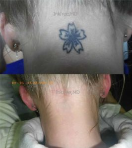 Laser tattoo removal - before and after 2