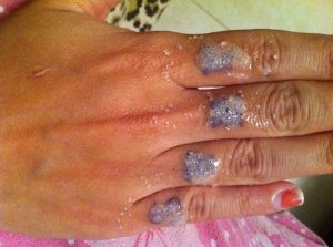 Avoid sea salt scrubs to remove tattoos