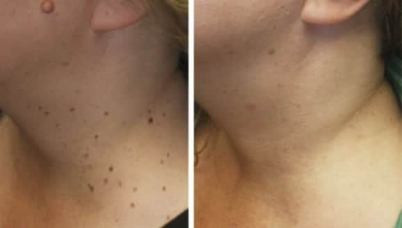Skin Tag Removal - Before/After 2