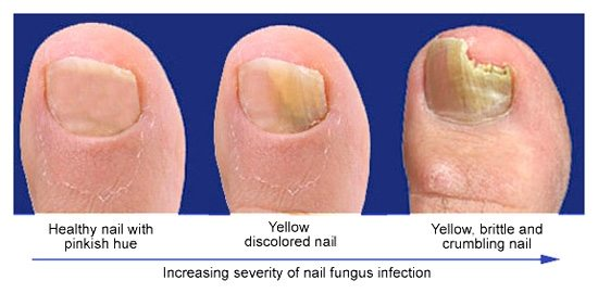 Laser toenail fungus removal at Inkfree, MD. Specials avialable.