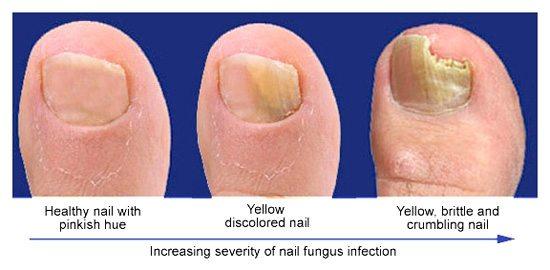 Изменение цвета ногтей на ногах 4